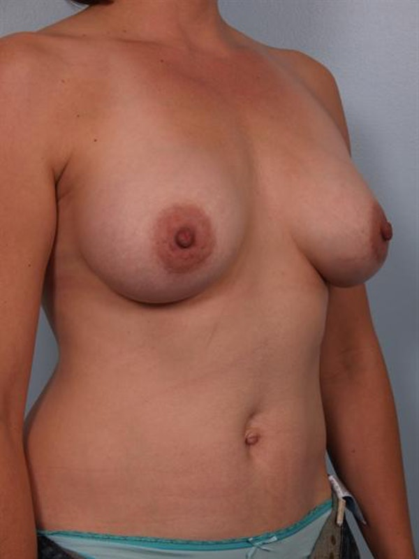 Breast Augmentation Gallery - Patient 1310037 - Image 2