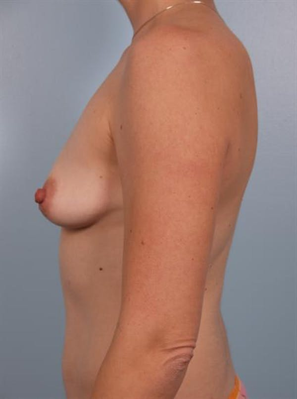 Breast Augmentation Gallery - Patient 1310037 - Image 3