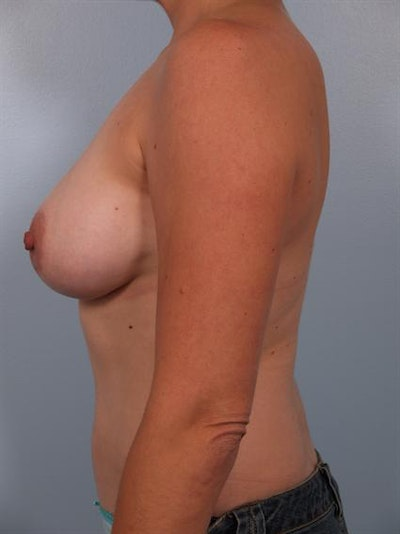 Breast Augmentation Gallery - Patient 1310037 - Image 4