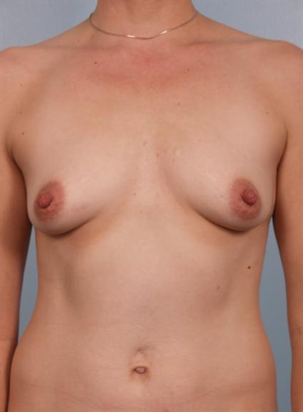 Breast Augmentation Gallery - Patient 1310037 - Image 5
