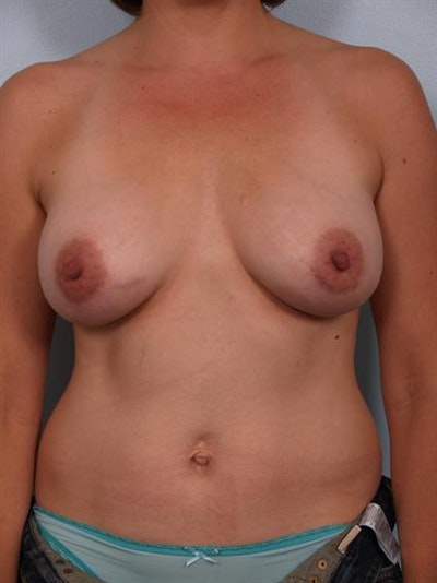 Breast Augmentation Gallery - Patient 1310037 - Image 6