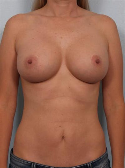Breast Augmentation Gallery - Patient 1310224 - Image 4
