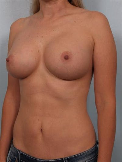 Breast Augmentation Gallery - Patient 1310224 - Image 6