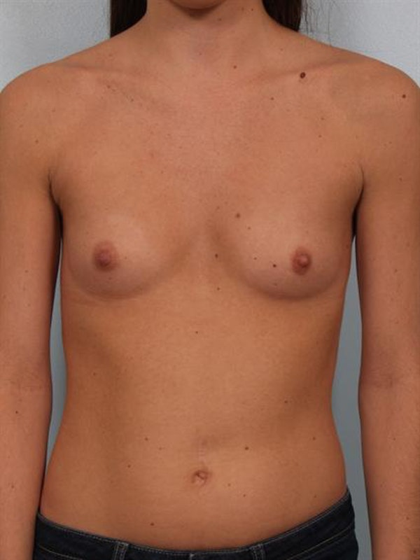 Breast Augmentation Gallery - Patient 1310226 - Image 1