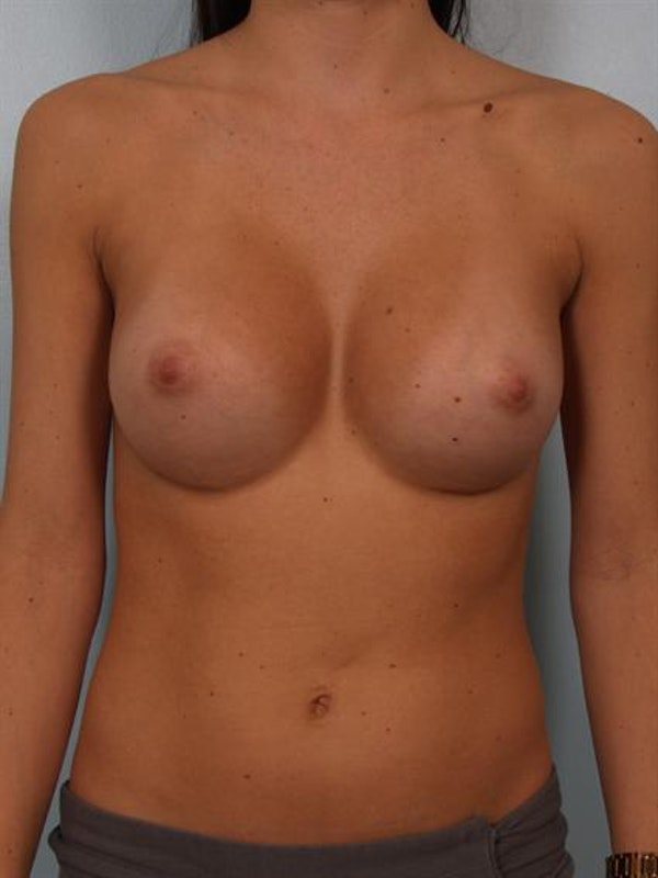 Breast Augmentation Gallery - Patient 1310226 - Image 2