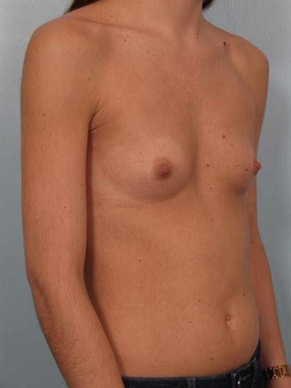 Breast Augmentation Gallery - Patient 1310226 - Image 3
