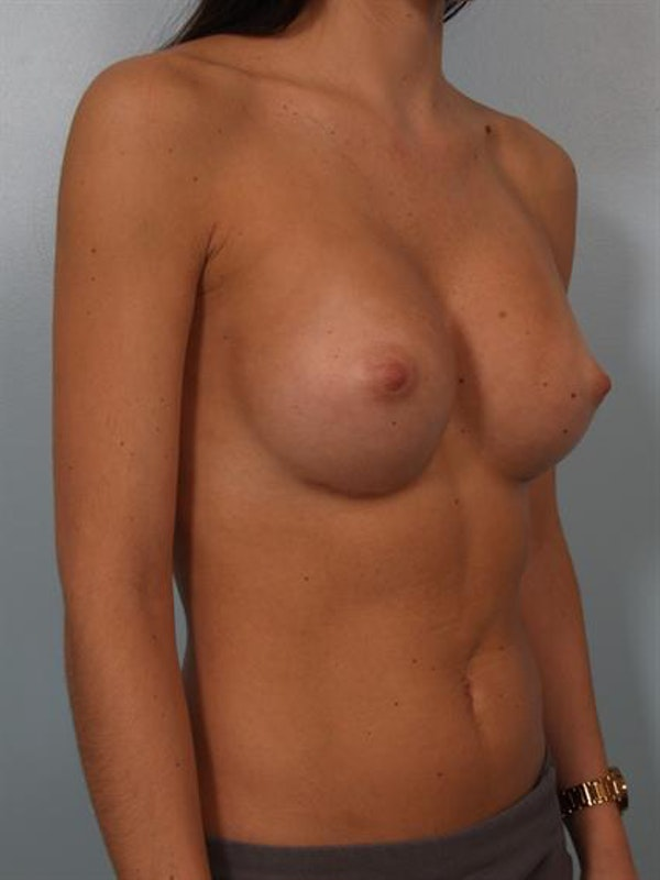 Breast Augmentation Gallery - Patient 1310226 - Image 4