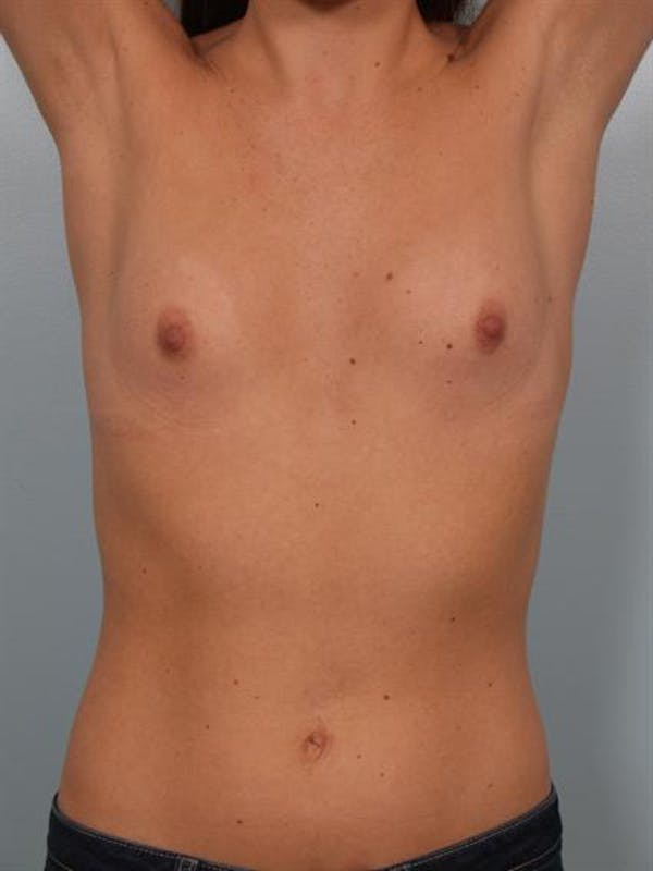 Breast Augmentation Gallery - Patient 1310226 - Image 5