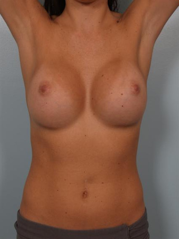 Breast Augmentation Gallery - Patient 1310226 - Image 6