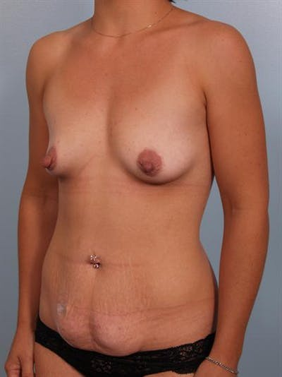 Breast Augmentation Gallery - Patient 1310228 - Image 1