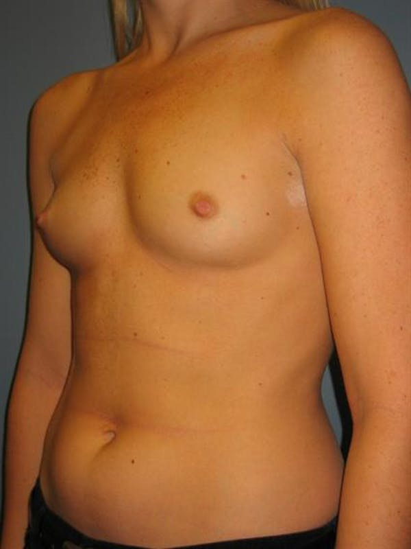 Breast Augmentation Gallery - Patient 1310229 - Image 1