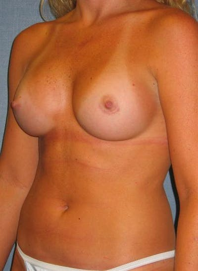 Breast Augmentation Gallery - Patient 1310229 - Image 2
