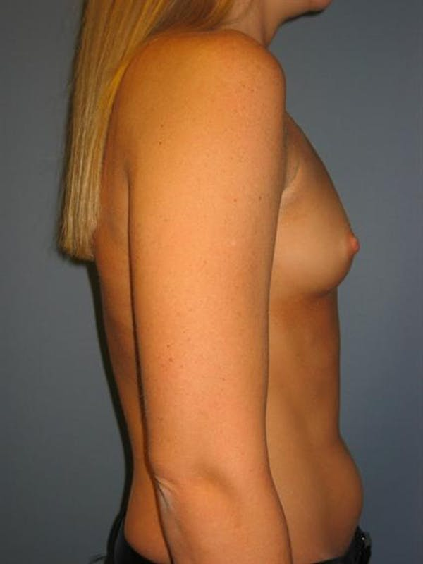 Breast Augmentation Gallery - Patient 1310229 - Image 3
