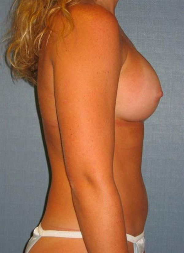 Breast Augmentation Gallery - Patient 1310229 - Image 4