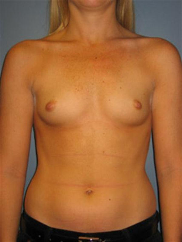 Breast Augmentation Gallery - Patient 1310229 - Image 5