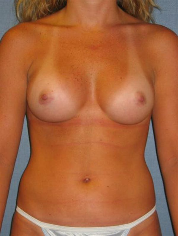 Breast Augmentation Gallery - Patient 1310229 - Image 6