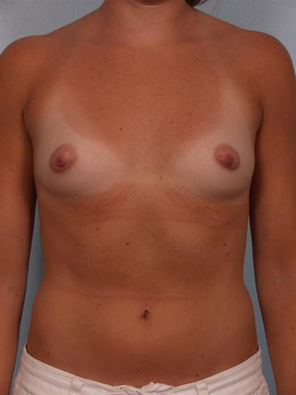 Breast Augmentation Gallery - Patient 1310231 - Image 1