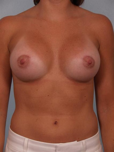 Breast Augmentation Gallery - Patient 1310231 - Image 2