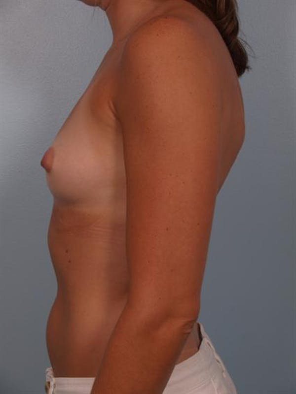 Breast Augmentation Gallery - Patient 1310231 - Image 3