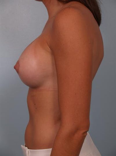 Breast Augmentation Gallery - Patient 1310231 - Image 4