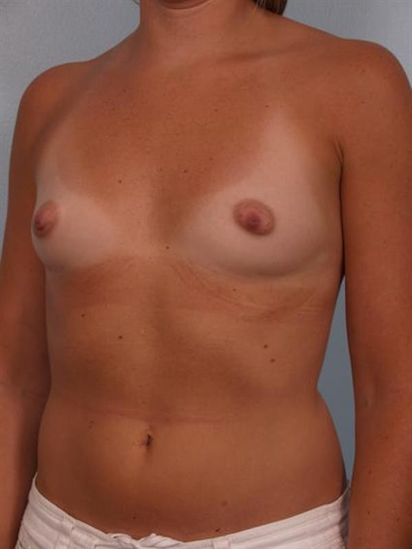 Breast Augmentation Gallery - Patient 1310231 - Image 5