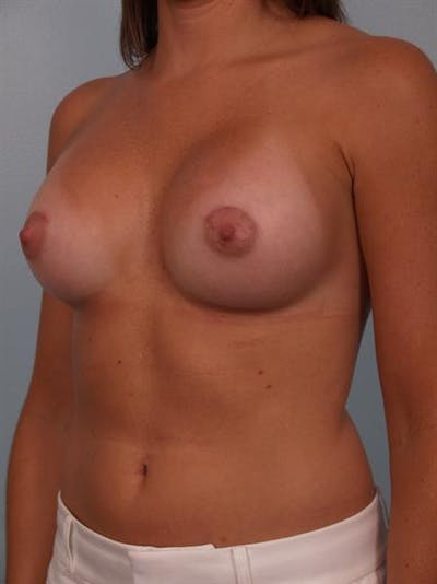 Breast Augmentation Gallery - Patient 1310231 - Image 6