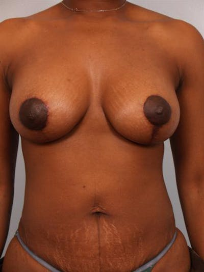 Breast Augmentation Gallery - Patient 1310232 - Image 4