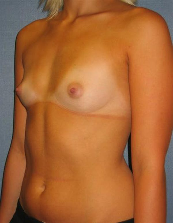 Breast Augmentation Gallery - Patient 1310234 - Image 1