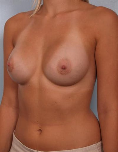 Breast Augmentation Gallery - Patient 1310234 - Image 2