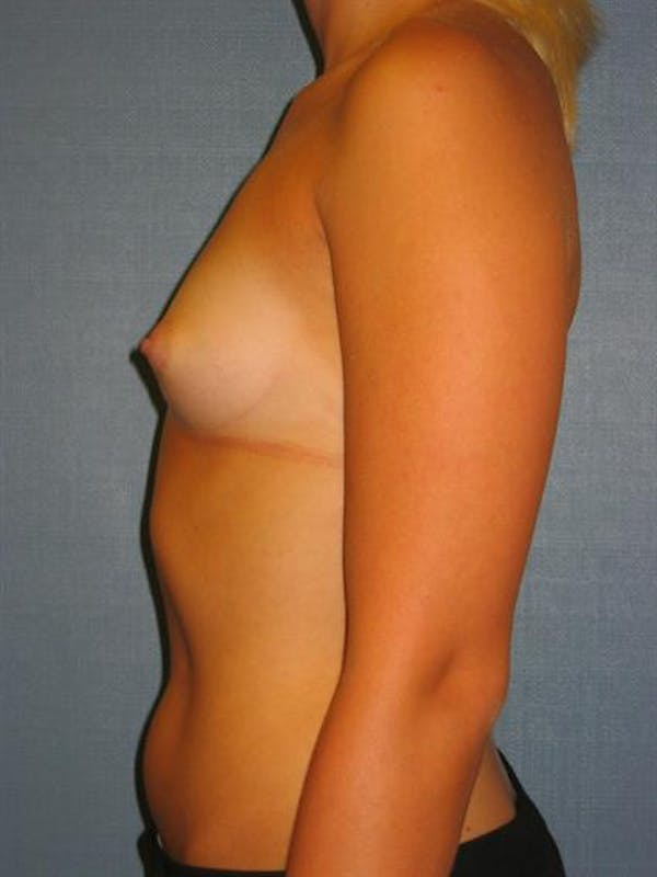 Breast Augmentation Gallery - Patient 1310234 - Image 3