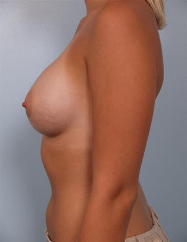 Breast Augmentation Gallery - Patient 1310234 - Image 4