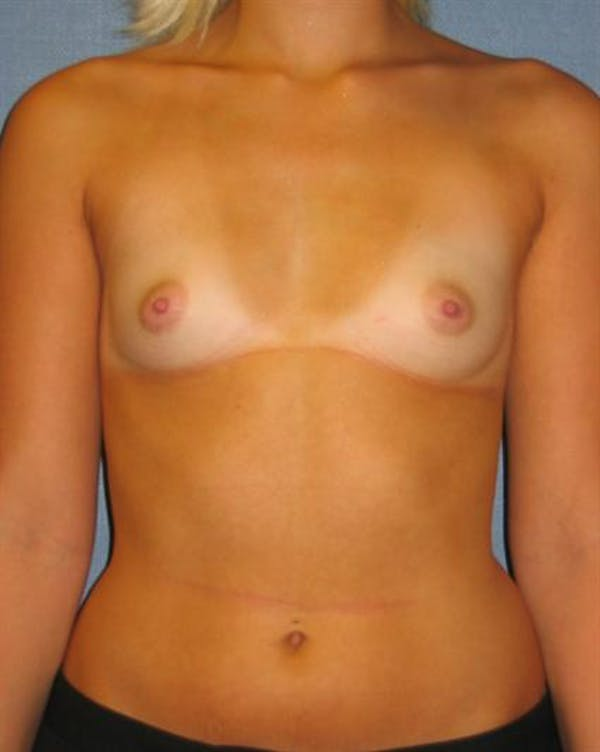 Breast Augmentation Gallery - Patient 1310234 - Image 5