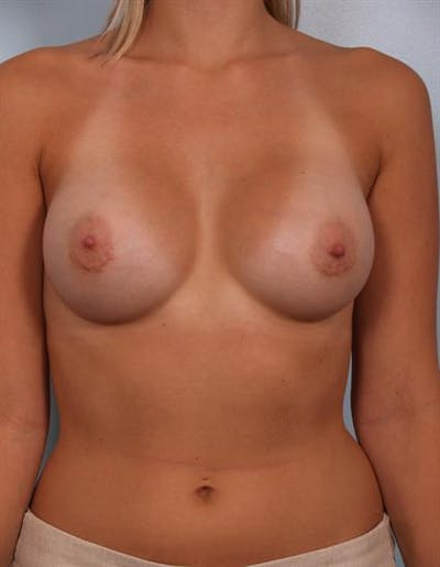 Breast Augmentation Gallery - Patient 1310234 - Image 6