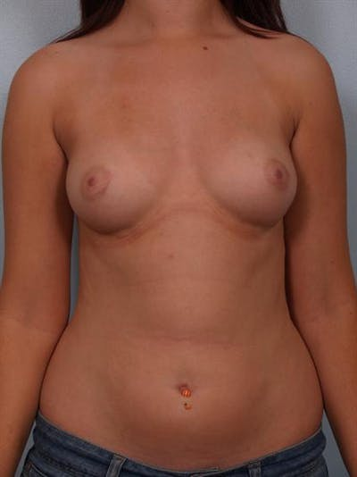 Breast Augmentation Gallery - Patient 1310236 - Image 1