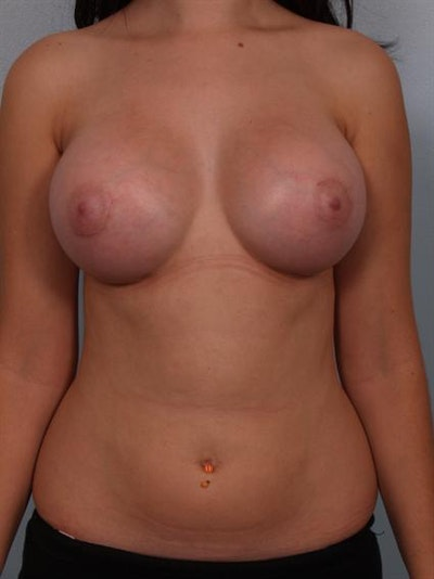 Breast Augmentation Gallery - Patient 1310236 - Image 2