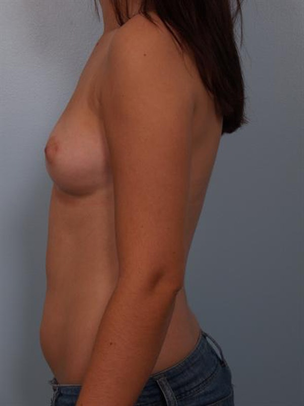 Breast Augmentation Gallery - Patient 1310236 - Image 3
