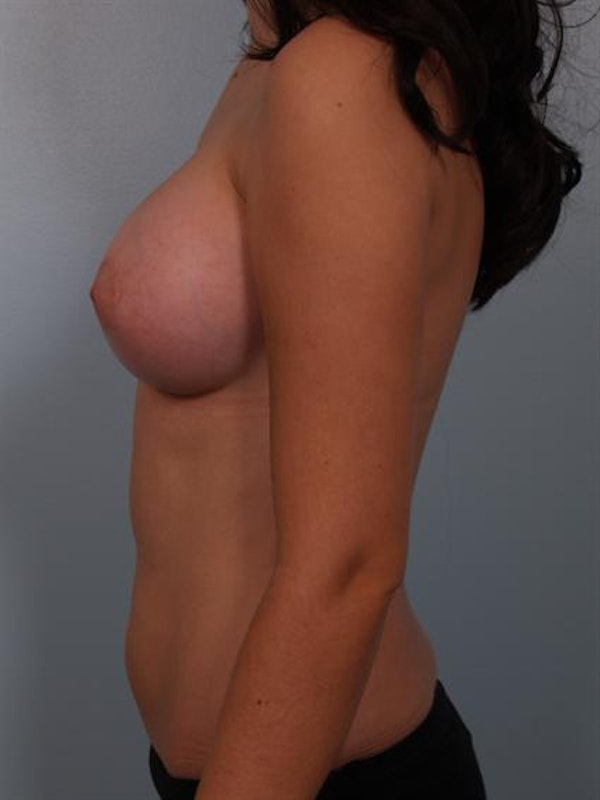 Breast Augmentation Gallery - Patient 1310236 - Image 4