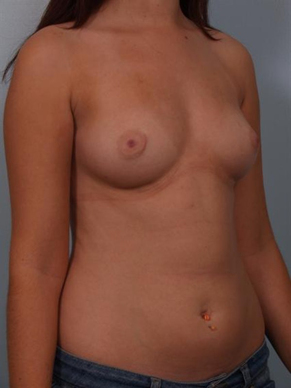 Breast Augmentation Gallery - Patient 1310236 - Image 5