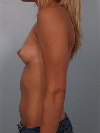 Breast Augmentation Gallery - Patient 1310240 - Image 1