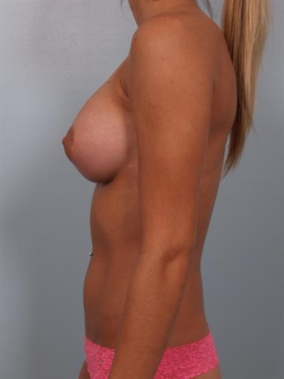 Breast Augmentation Gallery - Patient 1310240 - Image 2