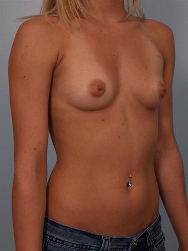 Breast Augmentation Gallery - Patient 1310240 - Image 3