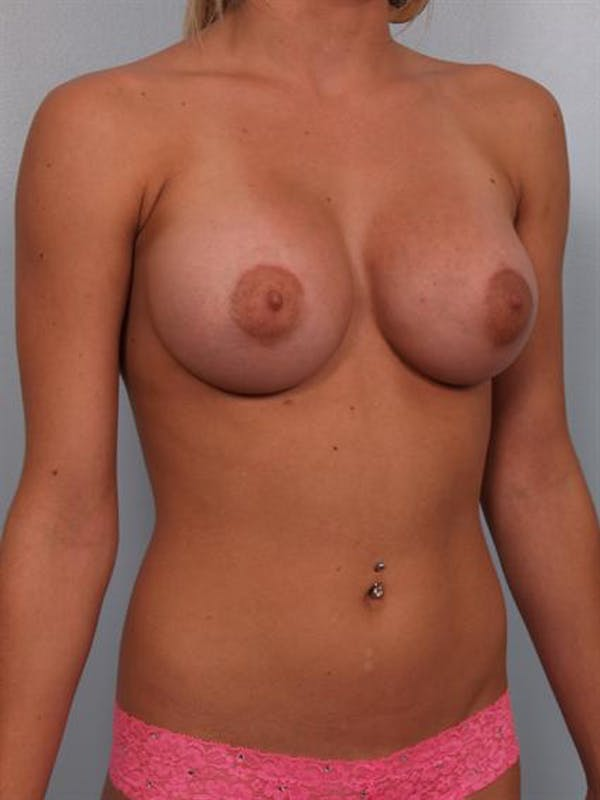 Breast Augmentation Gallery - Patient 1310240 - Image 4