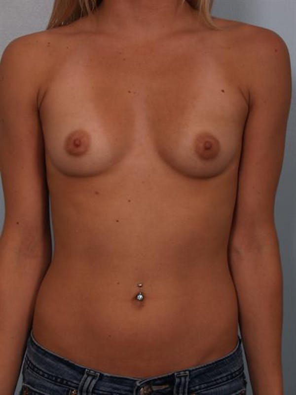 Breast Augmentation Gallery - Patient 1310240 - Image 5