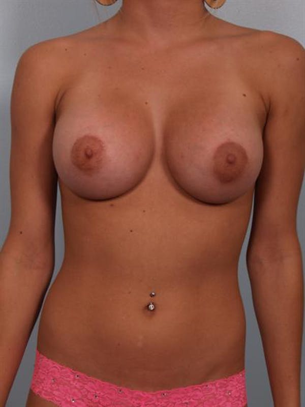 Breast Augmentation Gallery - Patient 1310240 - Image 6