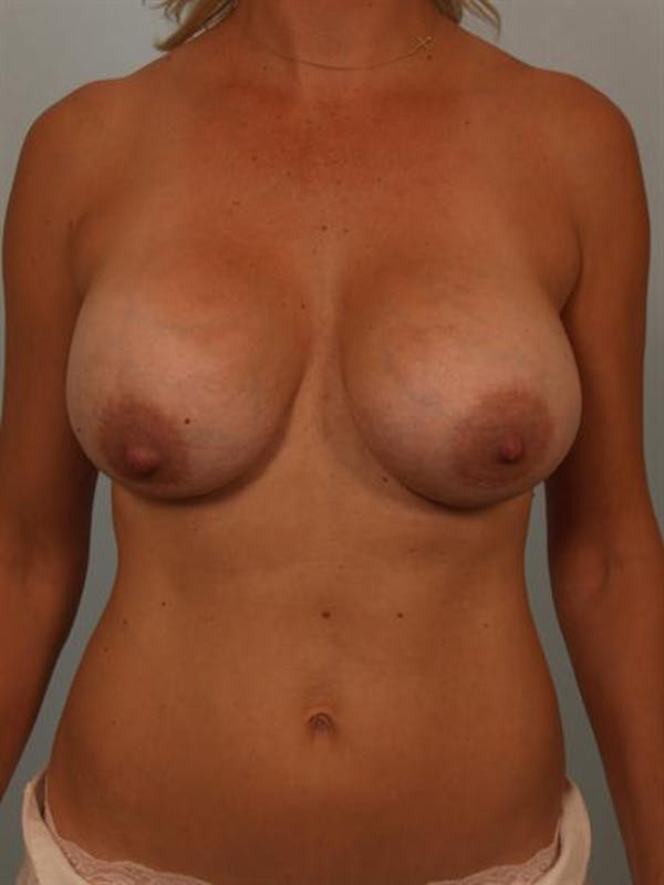 Breast Augmentation Gallery - Patient 1310241 - Image 1