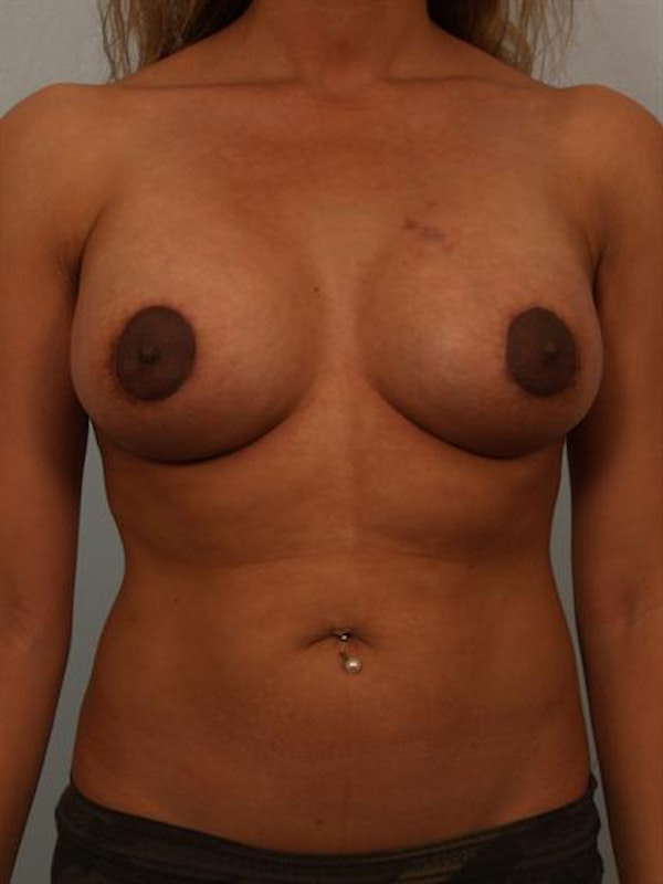 Breast Augmentation Gallery - Patient 1310243 - Image 2