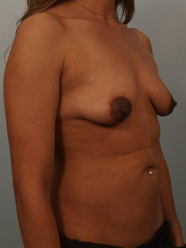 Breast Augmentation Gallery - Patient 1310243 - Image 3
