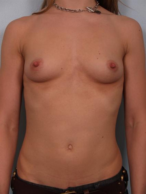 Breast Augmentation Gallery - Patient 1310245 - Image 1