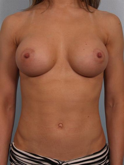 Breast Augmentation Gallery - Patient 1310245 - Image 2