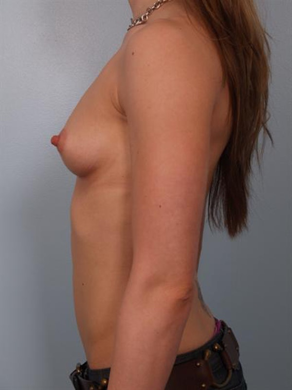 Breast Augmentation Gallery - Patient 1310245 - Image 3